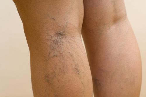Подкожная вена ноги лечение