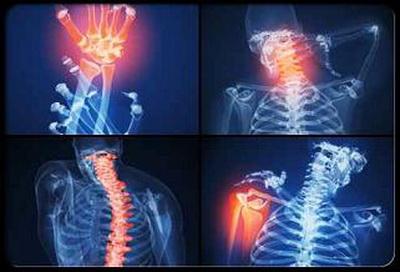 как не допустить артрит до своего тела