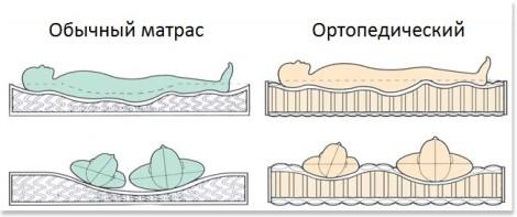 чем ортопедический матрас отличается от обычного